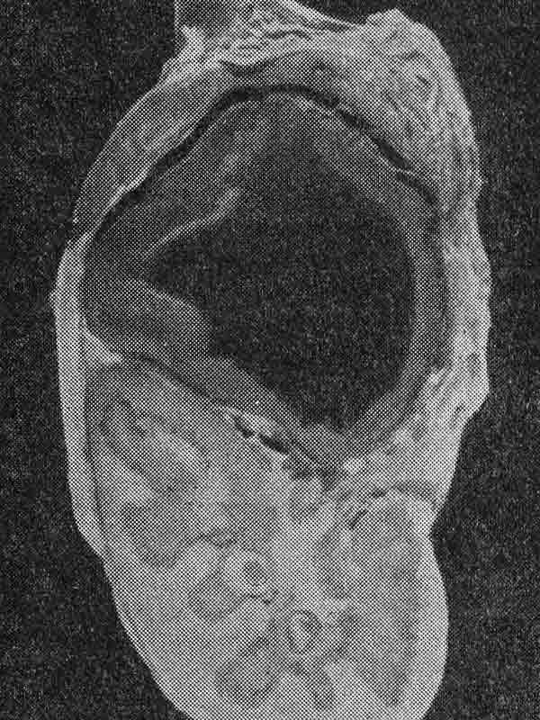 Гемолитическая желтуха новорождённых фото